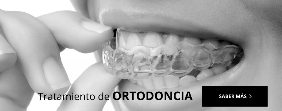 Ortodoncia Durcal
