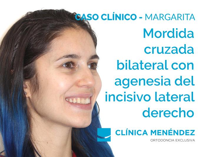 2121 04 05 caso margarita